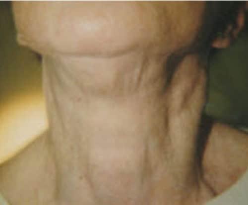 13382 Botox After E1539059689418 500x414