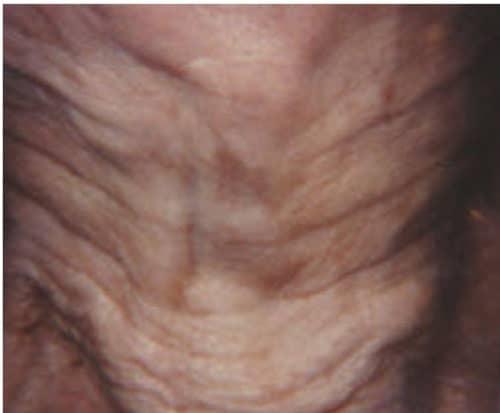 13382 Botox Before E1539059668583 500x413