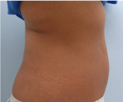 26441 Sculpsure After E1539385715185 500x415