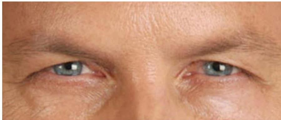28498 Botox After E1539059552892