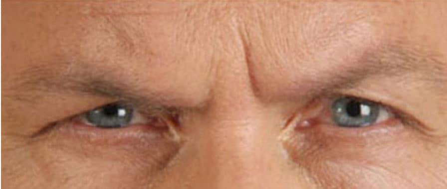 28498 Botox Before E1539059515634