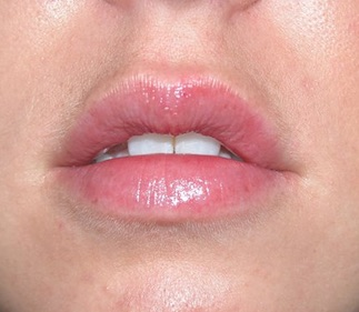 Lips after Juvederm Volbella