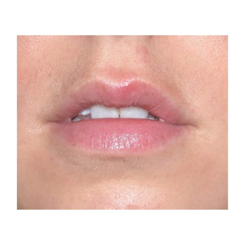 lips before Juvederm Volbella
