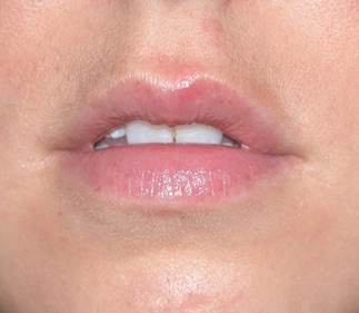 Lips before Juvederm Volbella
