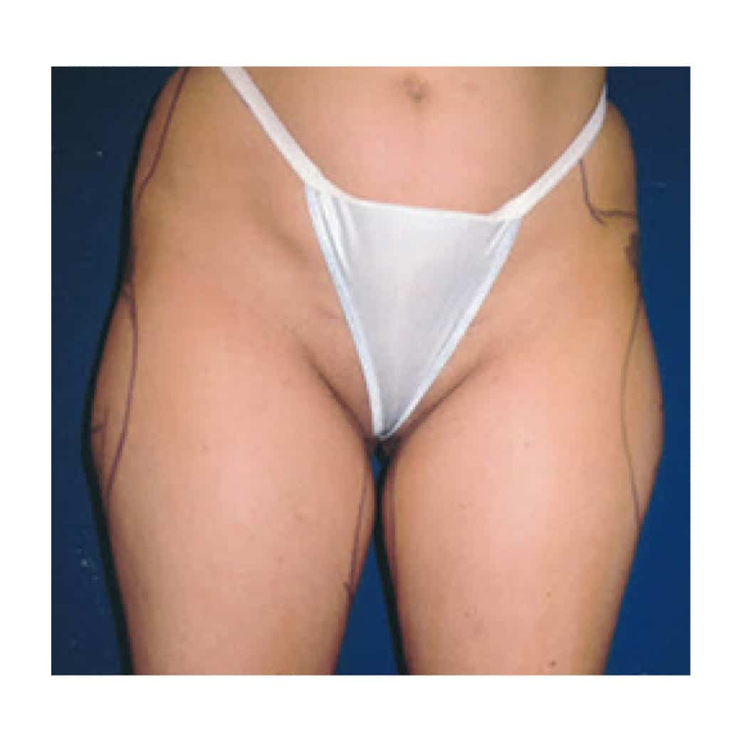 61352 Liposuction Before