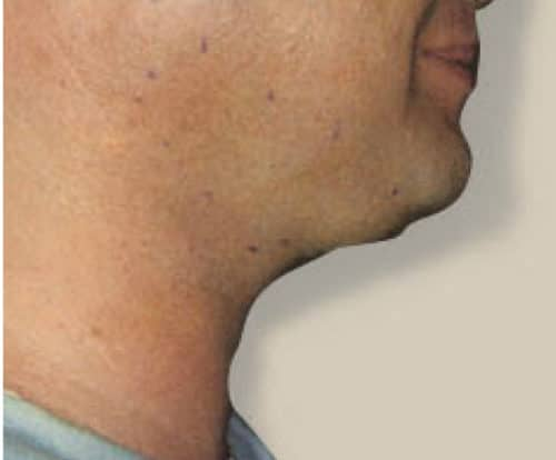 Before Kybella treatment