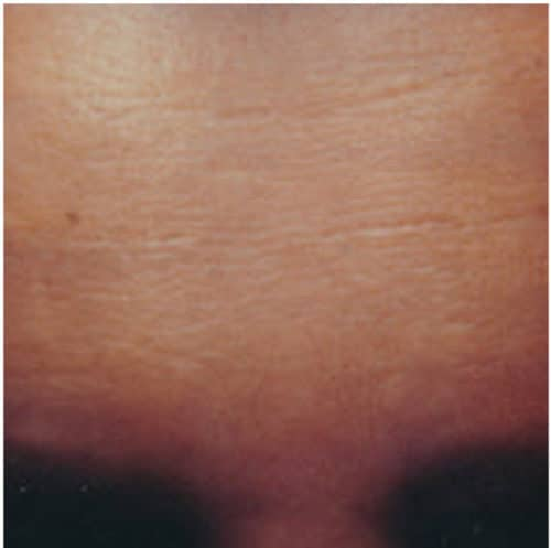 65090 Botox After2 E1539059845382 500x497