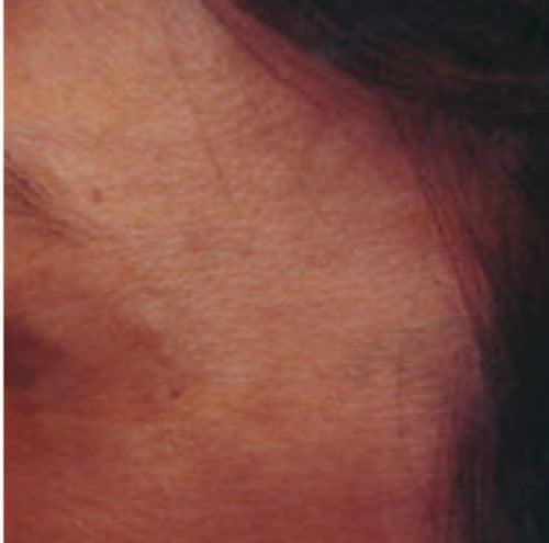 66328 Botox After E1539059732198 500x495