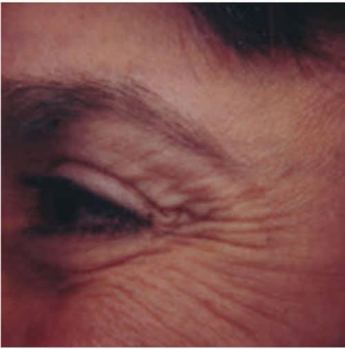 66328 Botox Before E1539059713336 500x507