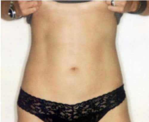Results after a Liposuction