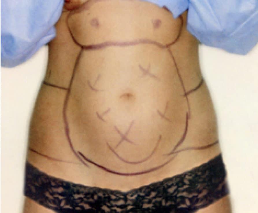 66884 Liposuction Before E1539182463911