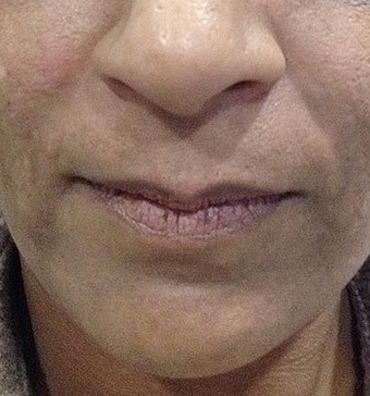 Restylane After