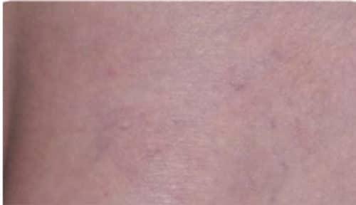 After Leg veins treatment2