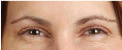 88963 Botox After E1539059435453 500x204