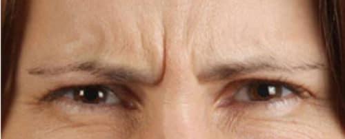 88963 Botox Before E1539059412918 500x202