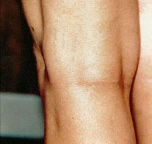 After Leg veins treatment