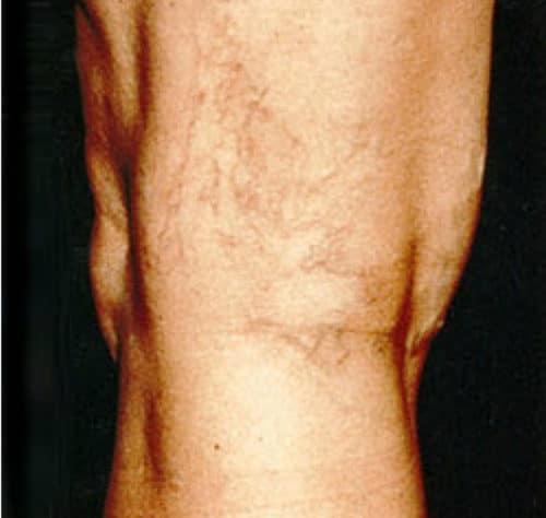 Before Leg veins treatment