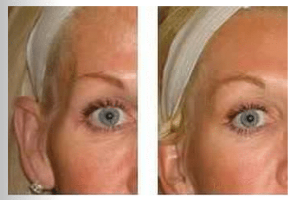 before and after belotero treatment on temples