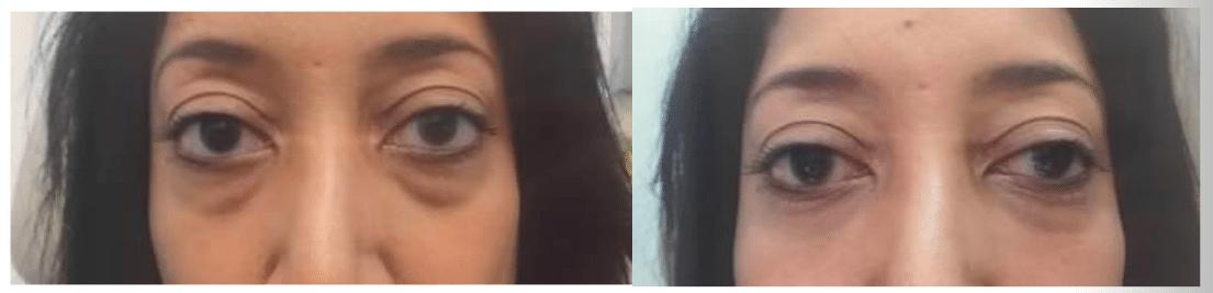 Belotero Under Eyes 2