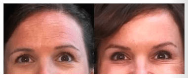 before and after treatment on forehead