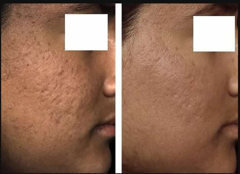 before and after Fraxel on cheeks