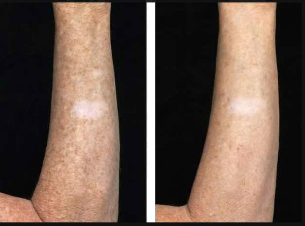 before and after Fraxel on arm