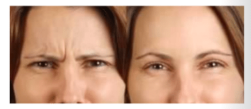 before and after glabella