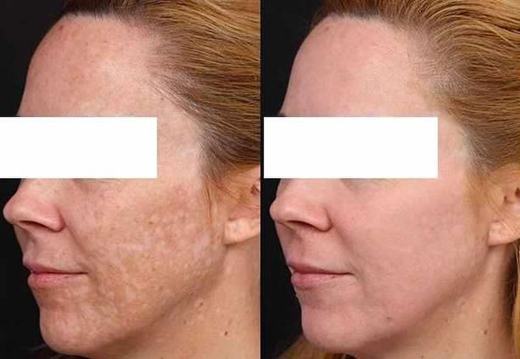 before and after Melasma