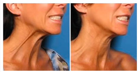 before and after neck bands treatment