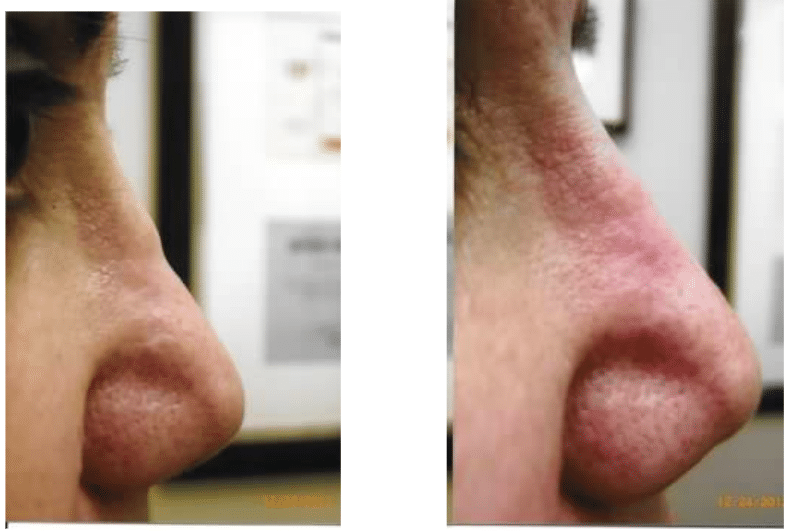 before and after Silicone on Nose Bridge2