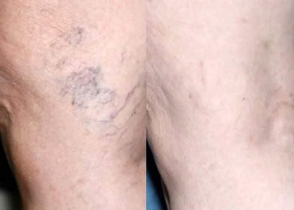 before and after Sclero treatment