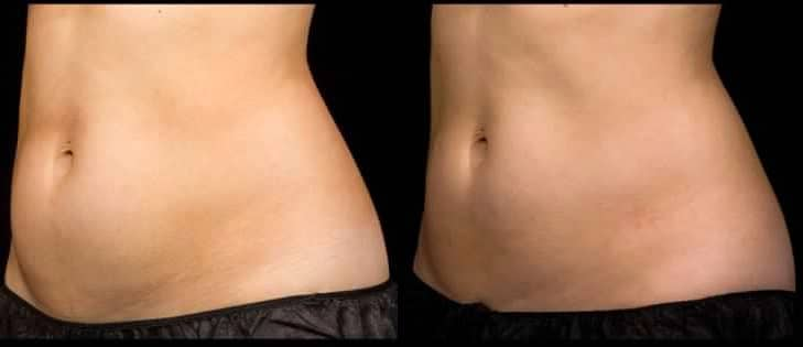 before and after sculpsure on abdomen