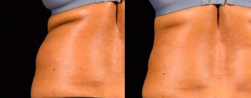 before and after sculpsure on flanks