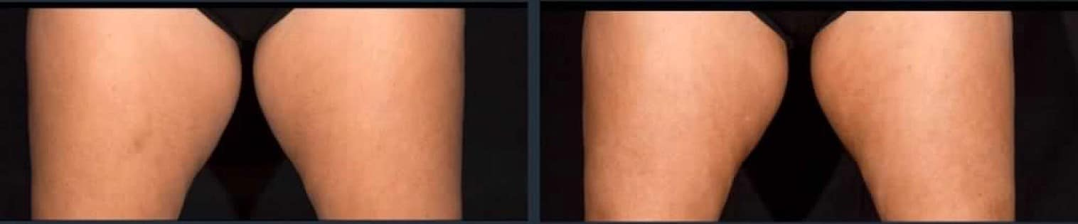 before and after Sculpsure thighs 2