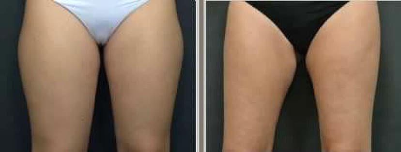 before and after Sculpsure tighs