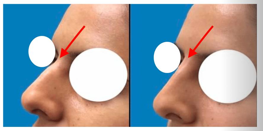 Silicone Nose Bridge 3