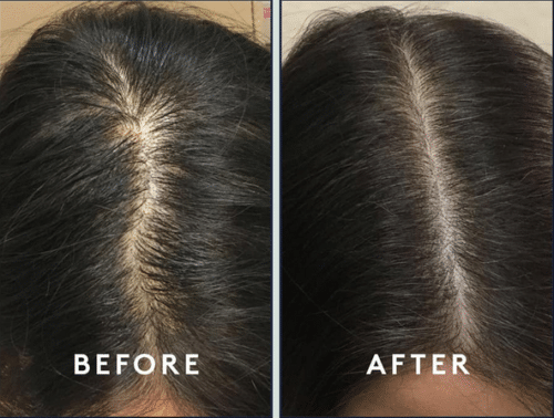 PRP Therapy hair loss before and after