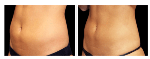 before and after tummy emsulpt manhanttan