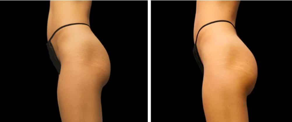 Emsculpt Butt Lift Before And After