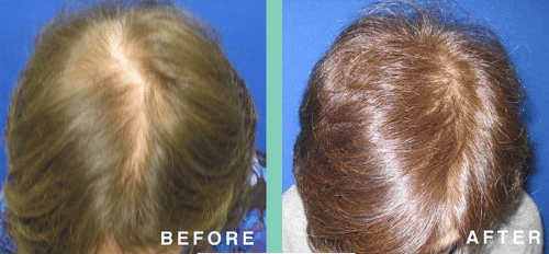 prp therapy before and after pic manhattan