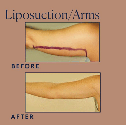 Lipo Arms Before And After Image 1 500x497