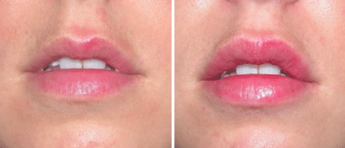 restylane lip fillers nyc