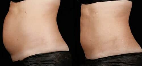sculpsure body contouring manhattan