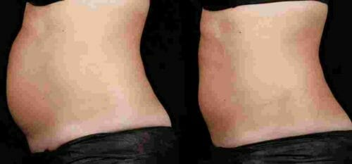 sculpsure body contouring nyc