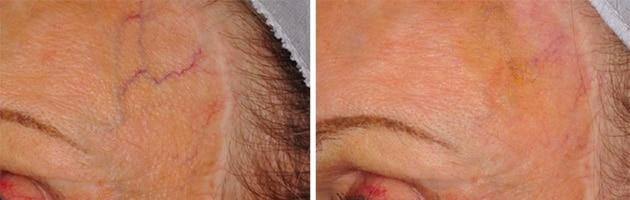 Cutera Forehead Veins Case 12