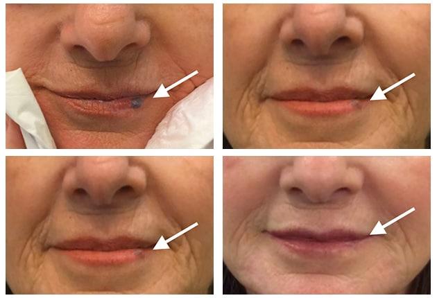 Cutera Lip Hemangioma Case 11