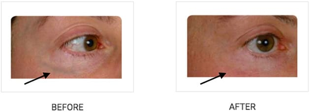 Cutera Periorbital Vein Case 14
