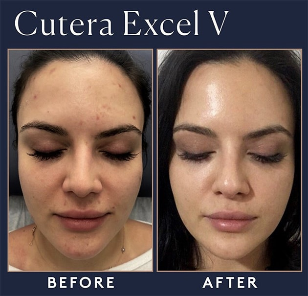 Cutera Red Acne Marks Case 17