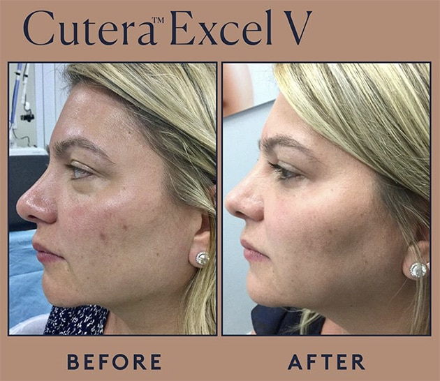 Cutera Red Acne Marks Case 18