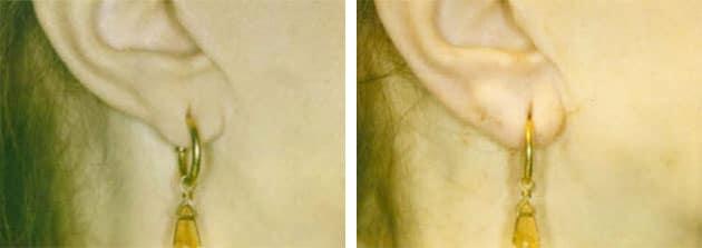 Earlobe Filler Case 2 Right Side View